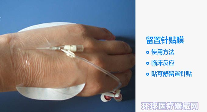 留置针贴膜的使用方法 有哪些临床反应