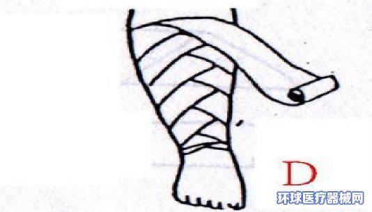 医用纱布怎么包扎伤口 看一看医用纱布包扎步骤图