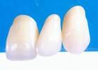 定制式固定义齿