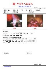 膀胱镜影像工作站