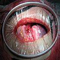 肤美切口牵开保护器_一次性切口牵开固定器