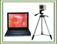 数码电子阴道镜阴道镜阴道镜镜头阴道镜检测仪全套配件不含电脑
