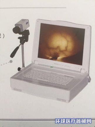JW-2102红外乳腺诊断仪
