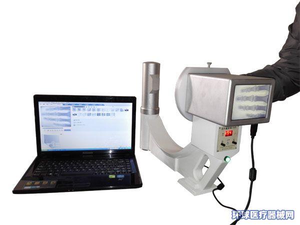 智能型便携式X光机