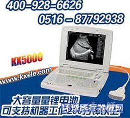 全数字黑白便携式B超KX5000,B超价格