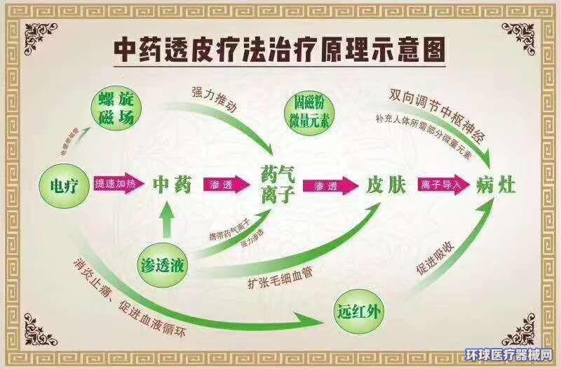 (厂家免费投放)透化治疗系统。