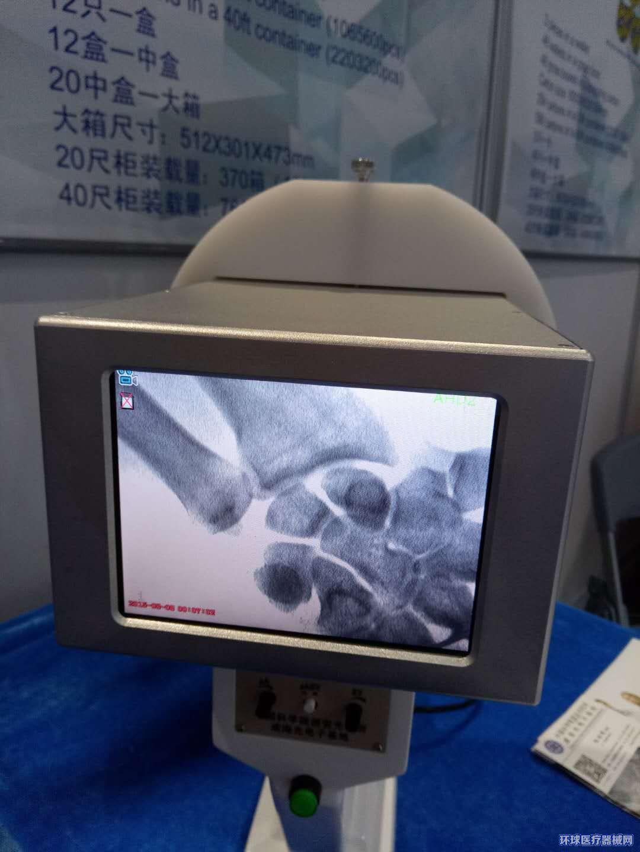 便携式X射线机直接看骨头看关节