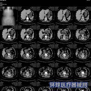 全球影像医用干式胶片(B超/CT/磁共振/X光胶片)