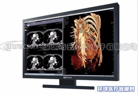 27英寸彩色一体双屏医用显示器安立信医疗液晶显示器显示屏