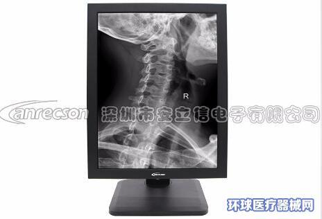 安立信21.3英寸3M灰阶医用显示器医疗液晶显示屏
