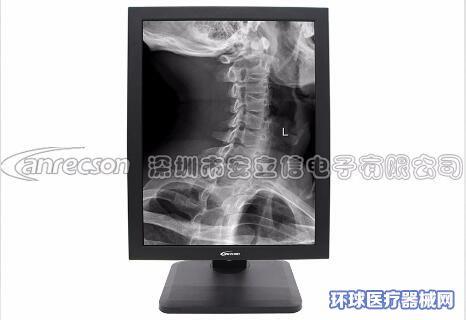 安立信21.3英寸5M灰阶显示器医用显示器