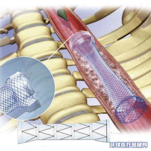 中惠圣熙食道支架(不锈钢覆膜食管支架)
