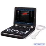 笔记本彩超机(全数字彩色多普勒超声诊断仪KAI-M系列)