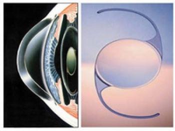 眼力健白内障人工晶体