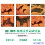 HP幽门螺杆菌免疫荧光染色液