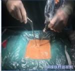 脊柱微创骨科手术器械包UBE