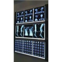 批发放射科、超声科各类医用胶片